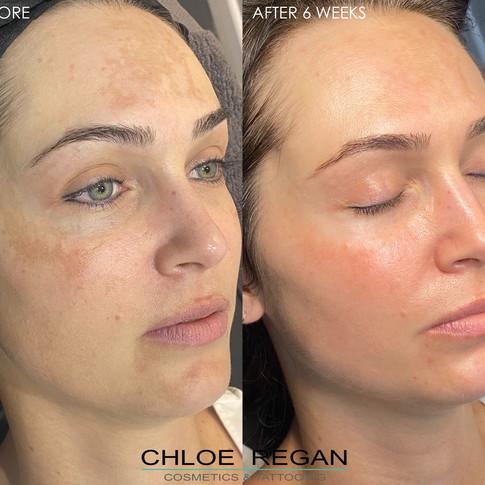 Cosmelan Peel before and after 6 weeks