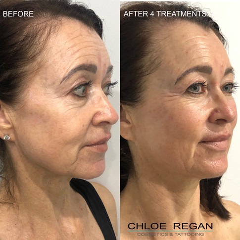 Alpha Shape Pro Before and after 4 treatments