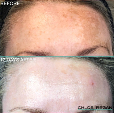 Cosmelan Peel, depigmentation treatment Before and 12 days After