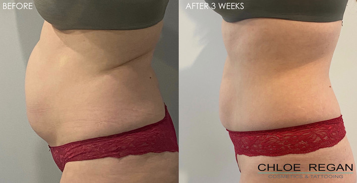 HIFU Body before and after 3 weeks