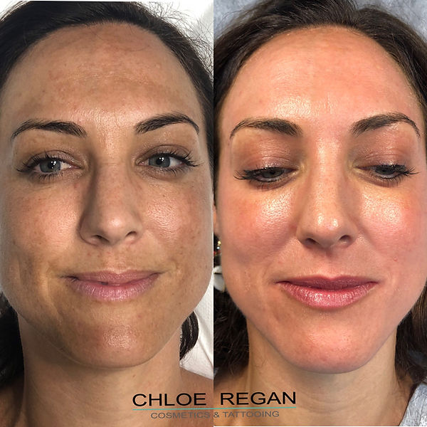 before and 2 weeks after Cosmelan Peel client blog, depigmentation treatment, chloe regan cosmetics and tattooing sunshine coast qld
