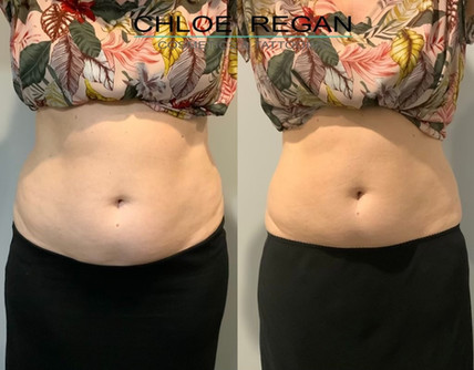 cm slim before and after
