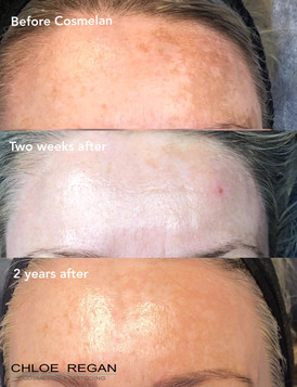 cosmelan treatment results over time