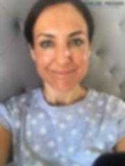 Day 2 Cosmelan Peel client blog, depigmentation treatment, chloe regan cosmetics and tattooing sunshine coast qld
