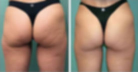 image 2 brazilian butt lift before and a