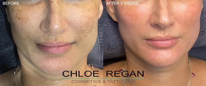 Cosmelan Peel before and after 5 weeks