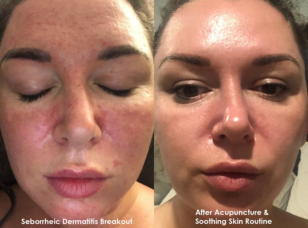 My Seborrheic Dermatitis Breakout & After Acupuncture & Soothing Skin Routine