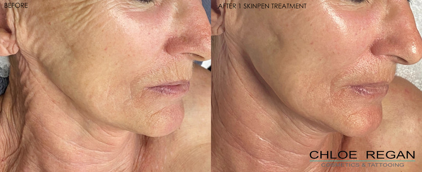 SkinPen before and after 1 treatment