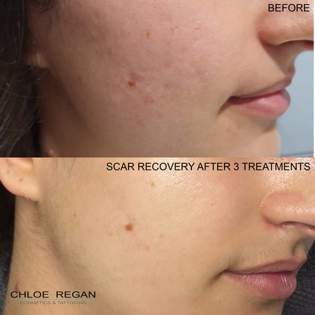 SkinPen Scar recovery before and after 3 treatments