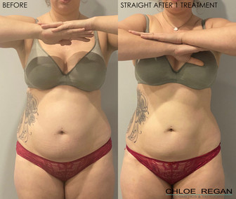 HIFU Body before and after 1 treatment
