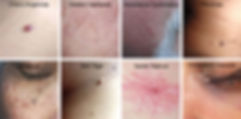 lamprobe treatments at chloe regan cosmetics Sunshine Coast QLD