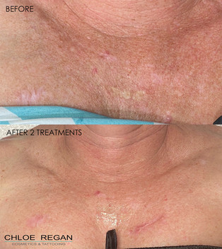 SkinPen befre and after 2 treatments