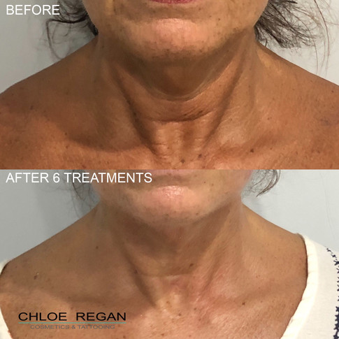 Alpha Shape Pro Before and after 6 treatments