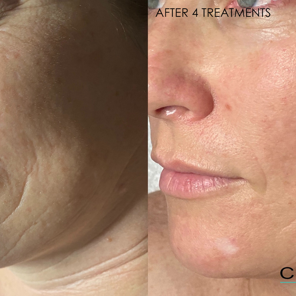 SkinPen before and after 4 treatments