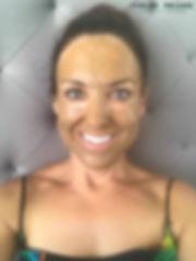 Day 1 Cosmelan Peel client blog, depigmentation treatment, chloe regan cosmetics and tattooing sunshine coast qld
