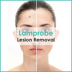 lamprobe lesion removal sunshine coast qld chloe regan cosmetcs and tattooing
