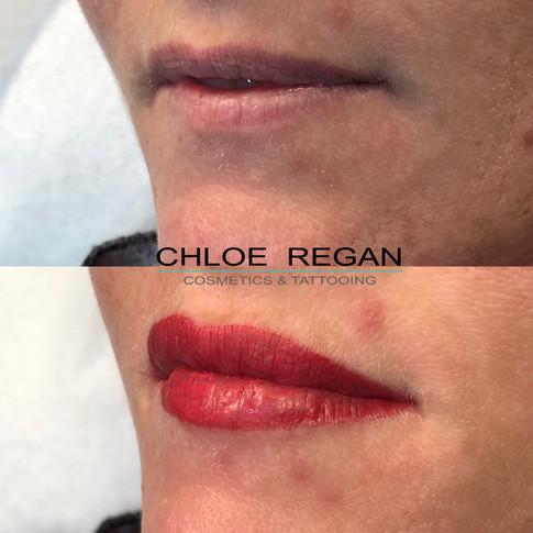 Lip Cosmetic Tattoo
