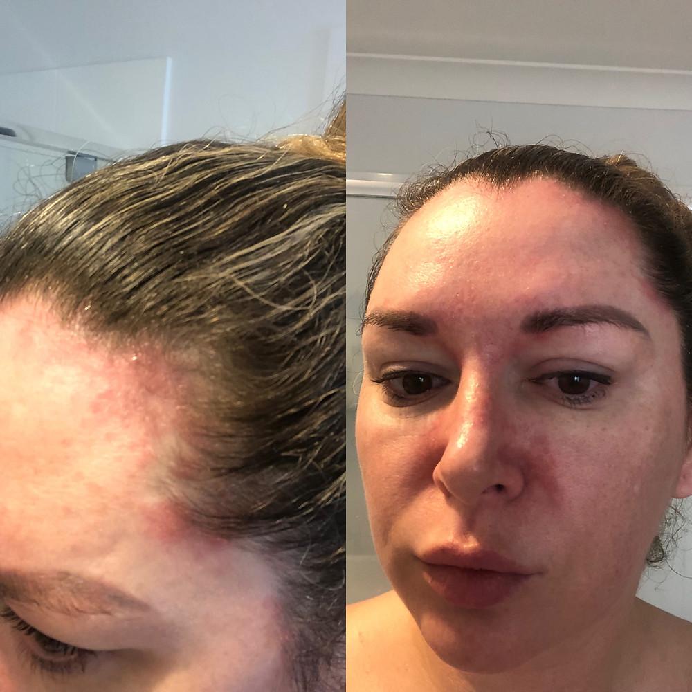 My Seborrheic Dermatitis Breakout