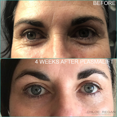 PlasmaLift crows feet wrinkle treatment before and 4 weeks after