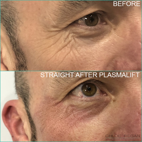 PlasmaLift crows feet wrinkle treatment before and straight after
