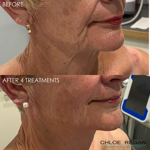 AlphaShape before and after 4 treatments