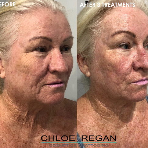 Alpha Shape Pro Before and after 3 treatments