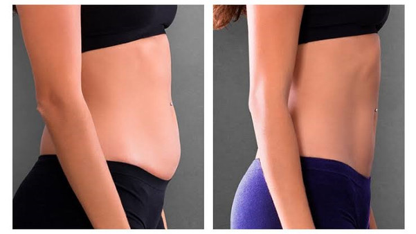 CMSlim before and after