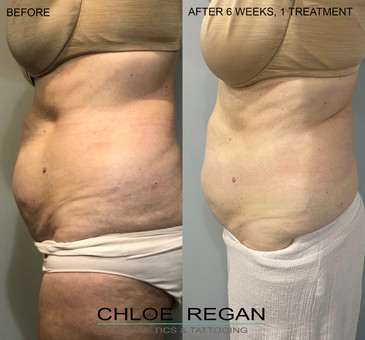 HIFU Body Before and after 6 weeks, 1 treatment