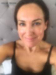 Day 7 Cosmelan Peel client blog, depigmentation treatment, chloe regan cosmetics and tattooing sunshine coast qld