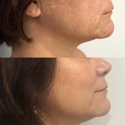 HIFU Before and After 6 weeks