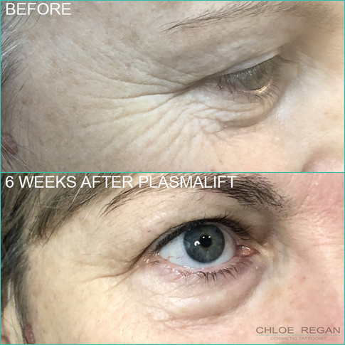 PlasmaLift crows feet wrinkle treatment before and 6 weeks after