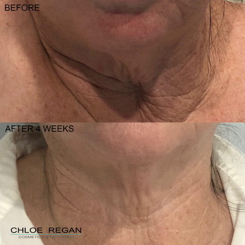 HIFU Before and After 4 weeks