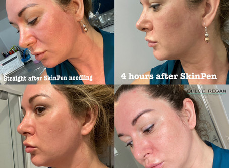 The bloody truth about skin needling 🩸🧛♀