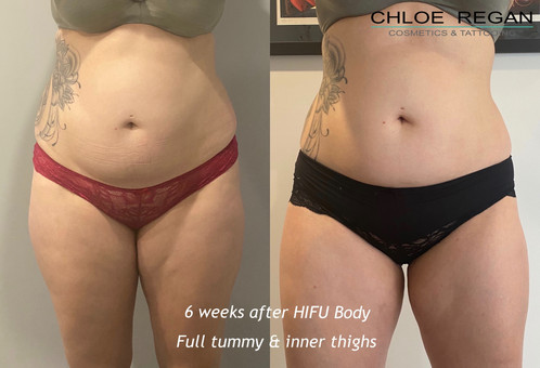 HIFU Body before and after 6 weeks