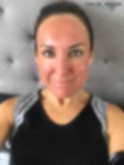 Day 3 Cosmelan Peel client blog, depigmentation treatment, chloe regan cosmetics and tattooing sunshine coast qld