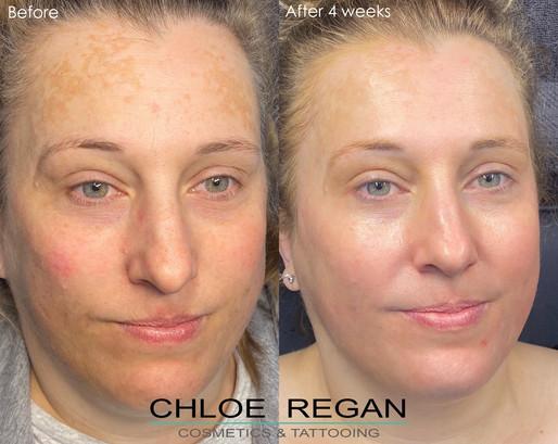 Cosmelan Peel before and after 4 weeks