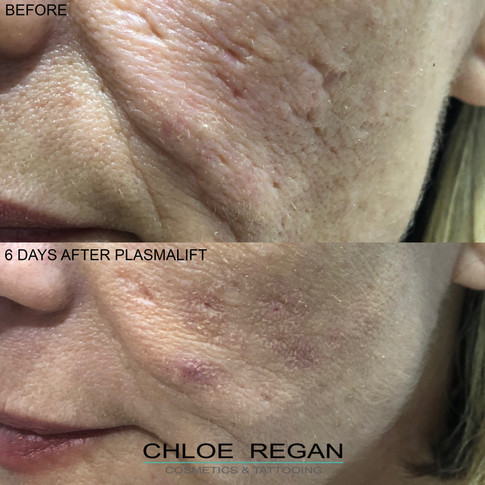 PlasmaLift acne scars treatment before and after 6 days