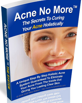 Acne no more you will be amazed with the results