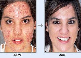 acne no more.jpg