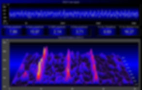 Example of the frequency pattern  during Hypnagogic Light Experience