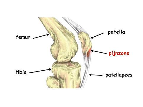 jumper's knee.jpg