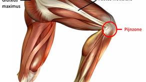 Runners knee of iliotibiaal frictiesyndroom