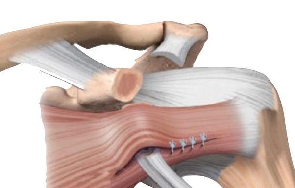 Curso Online: Instabilidade Anterior do Ombro com Lesão Óssea