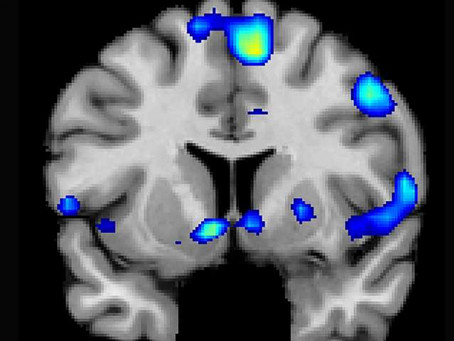 Brain scans on Mormons show religion has a similar effect to taking drugs