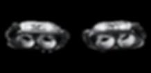 Mercedes SLS AMG Akrapovic