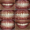Aesthetic Gingival Recontouring