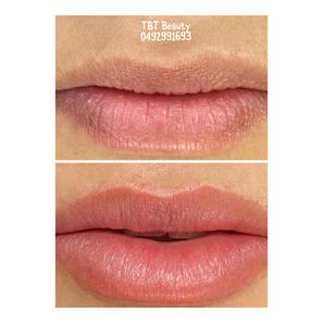 Healed Lips.JPG