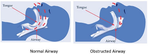 Airway Diagram.jpg