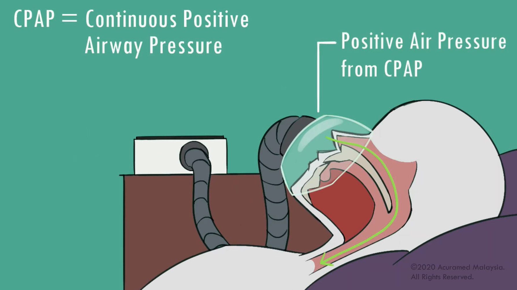 Benefits of CPAP.mp4