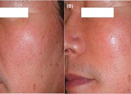 Outcomes of PDO Knotless Thread Lifting for Facial Rejuvenation